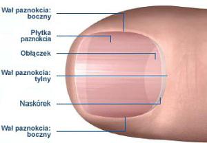 wrastajace paznokcie leczenie wrocław