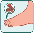 leczenie grzybicy paznokci